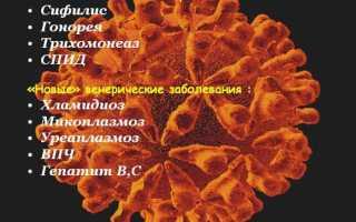 Заражение венерической болезнью по ст. 121 УК РФ: состав преступления