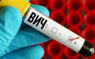 Умышленное заражение ВИЧ – ст 122 УК РФ: особенности, состав преступления